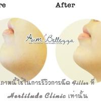 [ ❤ Review ❤ ] ฉีด Filler เสริมคาง ยกมุมปาก สวยได้ภายในข้ามคืน ที่ Hertitude Clinic